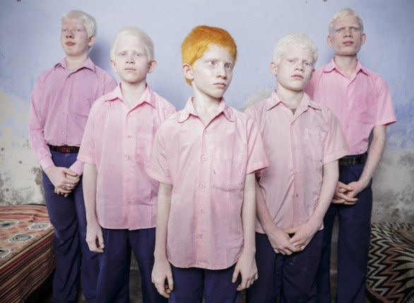 16 PEOPLE – STAGED PORTRAITS SINGLES - Brent Stirton, South Africa, Reportage by Getty Images, Blind albino boys, West Bengal, India © World Press Photo of the Year 2013