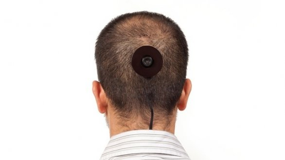 how to fix cowlick on back of head